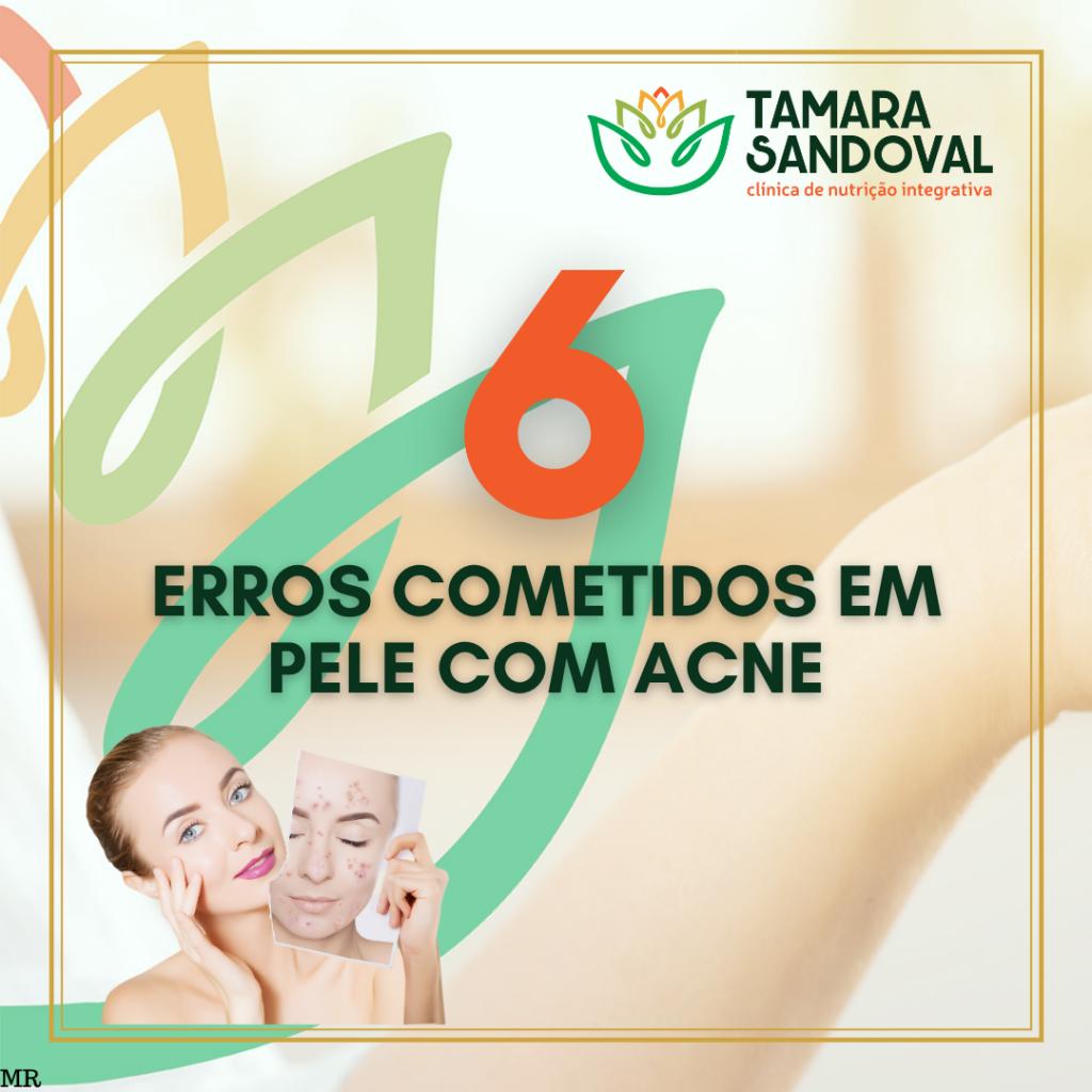 6 erros cometidos em pele com acne